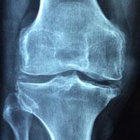Rentgen onemocnění osteoporózou